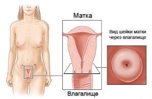 Виды патологий шейки матки
