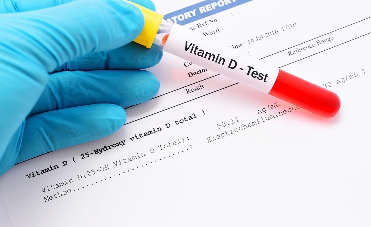Анализ на витамин Д