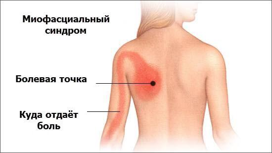 Коррекция миофасциального болевого синдрома методами восточной медицины